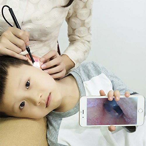 VICIVAN Visual Endoscope,Digital Ear Endoscope Video Scope Waterproof USB Computer Andriod Connected Ear Borescope Clean inspection Camera with LED Otoscope OTG UVC Android PC-4.5FT