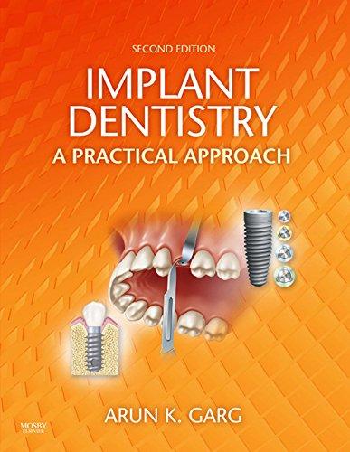 Implant Dentistry - E-Book