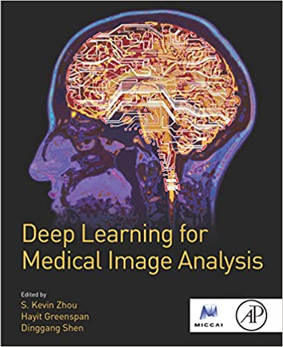 Deep learning for medical image analysis kindle edition by s deep learning for medical image analysis 1st edition kindle edition fandeluxe Image collections