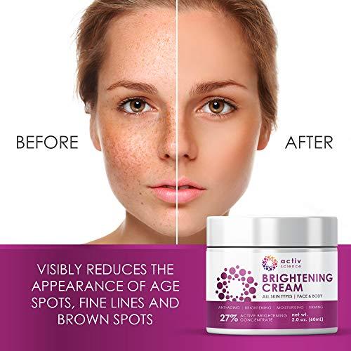 510juYHBi7L - ACTIVSCIENCE Whitening Cream - Powerful Skin Lightening Cream for Face & Body. Dark Spot, Melasma & Hyperpigmentation Treatment. 2 fl oz.