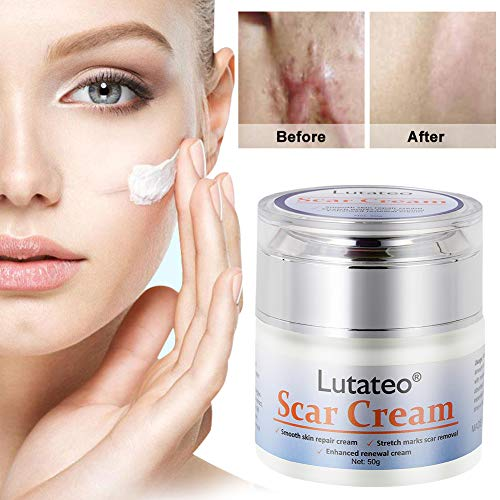 Scar Cream, Stretch Mark Cream, Acne Scar Removal Cream, Acne Spots Treatment, Burns Repair, Face Skin Repair Cream(50g)