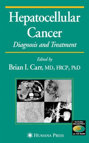 Hepatocellular Carcinoma Liver (Hepatocellular Carcinoma: Diagnosis and Treatment, Second Edition (Current Clinical Oncology))
