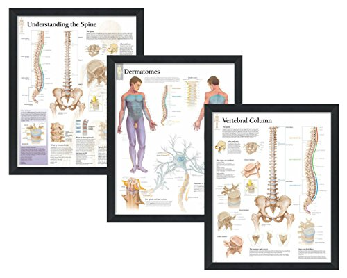 (Set of 3 Framed Medical Posters Understanding the Spine, Dermatomes, and Vertebral Column 22