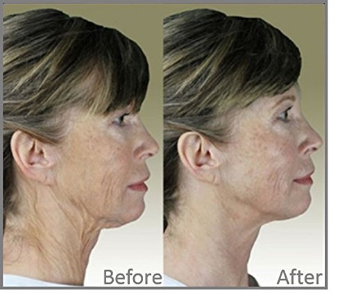 DermaWand Complete TV Kit - ANTI-AGING SYSTEM by Dermawand (Image #5)