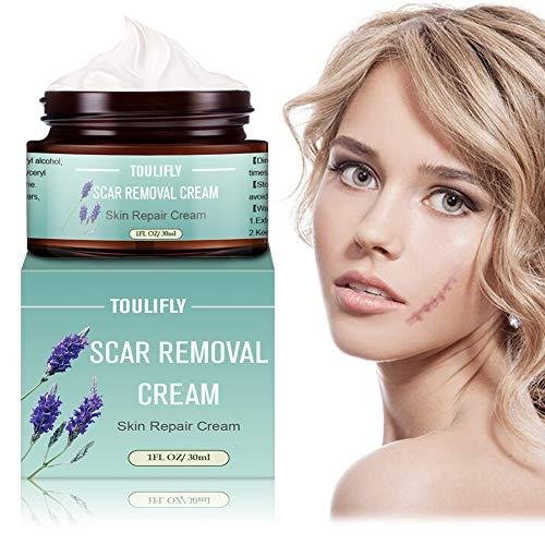 Scar Cream,Scar Removal,Scar Treatment,Scar Removal Cream,Scar Remover Repair Fade Cream for Face Body Surgical Scars Burns Old Scars