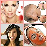 Blackhead Home Remedies Home Remedies For Everytype Of Skin Problems: get glow & get rid of dandruff and blackheads (Get rid of all skin problems Book 1)