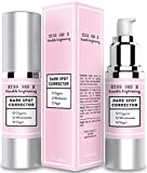 Dark Spot Corrector for Face. Dark Spot Remover Cream for Body, Face, Neck