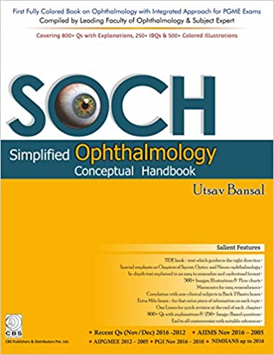 Amazon in: Buy SOCH-Simplified Ophthalmology Conceptual