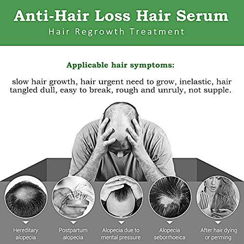 Hair Growth Serum,Hair Loss &Hair Thinning Treatment,Hair Serum,Stimulates New Hair Growth, Promotes Thicker, Fuller and Faster Growing Hair