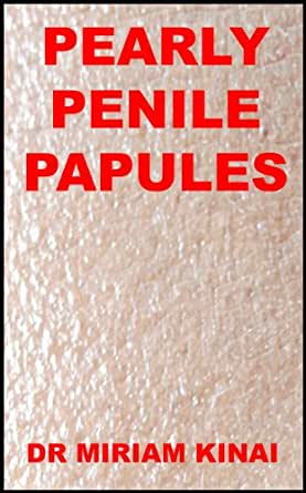 pearly papules cause