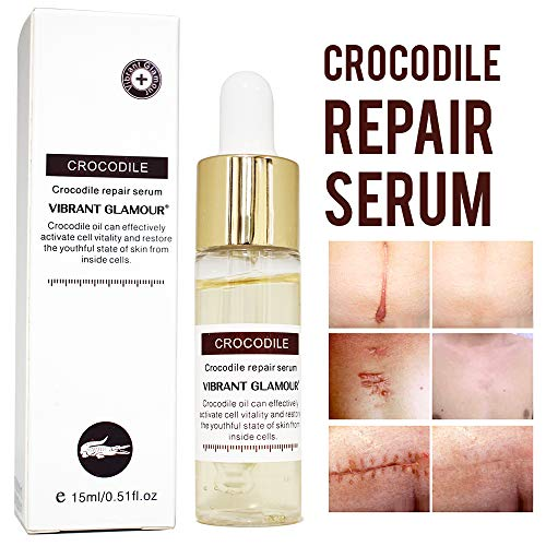 Crocodile Repair Face Serum for Acne Scars, Anti-Aging - Treats Acne, Wrinkles, Stretch Marks - Lightens Old Scars, Removes New Scars - for Men and Women