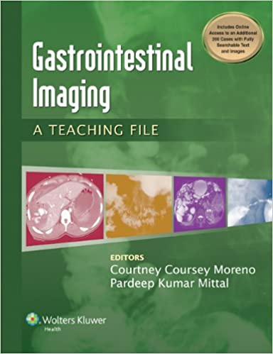 Amazon gastrointestinal imaging a teaching file lww teaching gastrointestinal imaging a teaching file lww teaching file series 1st edition kindle edition fandeluxe Choice Image