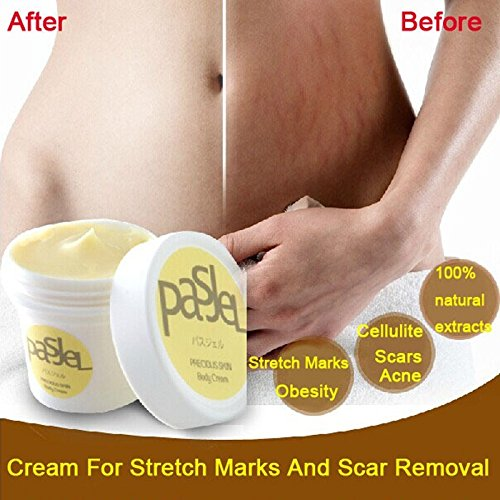 LinlyQueen Cream For Stretch Marks And Scar Removal Power...