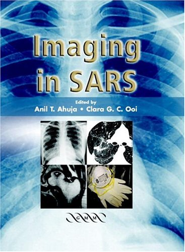 Download Imaging in SARS ebook