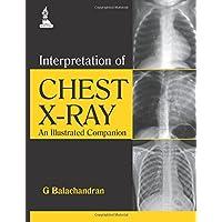 Interpretation of Chest X-Ray: An Illustrated Companion