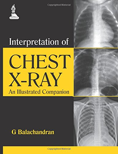 Pdf Medical Books Interpretation of Chest X-Ray: An Illustrated Companion