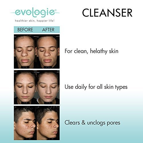 Evologie Stay Clear Cleanser   Non-drying facial cleanser that unclogs pores, removes bacteria, oil, and makeup for all skin types,Travel Size (different bottle style) by Evologie (Image #2)