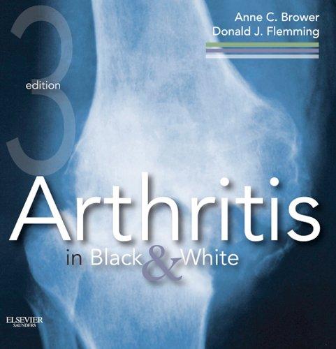 Arthritis in Black and White Pdf