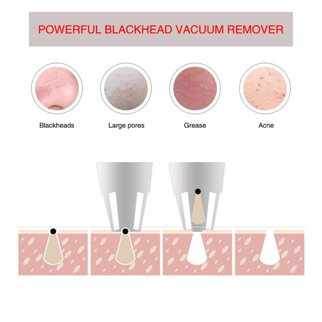 Blackhead Remover Vacuum, J'sBeauty Upgraded 8 in 1 Dual Mode USB Rechargeable Electric Blackhead Strong Vacuum Suction Removal Derma Skin Pore Cleaner Acne Comedone Pimple Extractor Tool Set (Style)