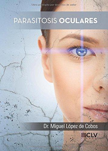 Parasitosis oculares (Spanish Edition) [Dr. Miguel Lopez] (Tapa Blanda)