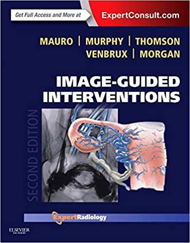 Image-guided Interventions: Expert Radiology Series (expert Consult - Online And Print), 2e por Matthew A. Mauro Md  Facr epub