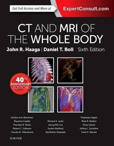 CT And MRI Of The Whole Body 2 Volume Set  Else04