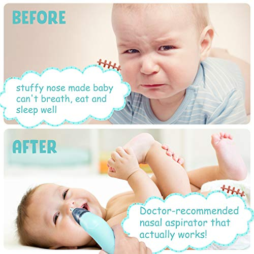 Booger Sucker for Infants-Baby Nasal Aspirator-Baby Nose Cleaner-Electric
