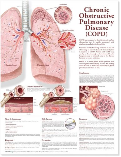 Chronic Obstructive Pulmonary Disease Anatomical Chart Lippincott Williams & Wilkins 9780781782364 Medical / Nursing ANF: Health and Wellbeing Allied Health Services - Respiratory Therapy Anatomy Clinical Medicine: Professional Education & Training