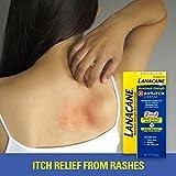 Lanacane Anti Itch Cream Max Strength, 1 Ounce