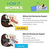 Acne Scar Remover Cream, Acne Remover Cream, Acne