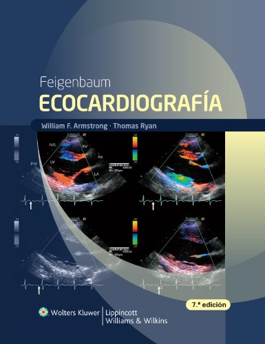 Download Feigenbaum Ecocardiografia (Spanish Edition) Pdf