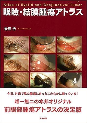 眼瞼・結膜腫瘍アトラス
