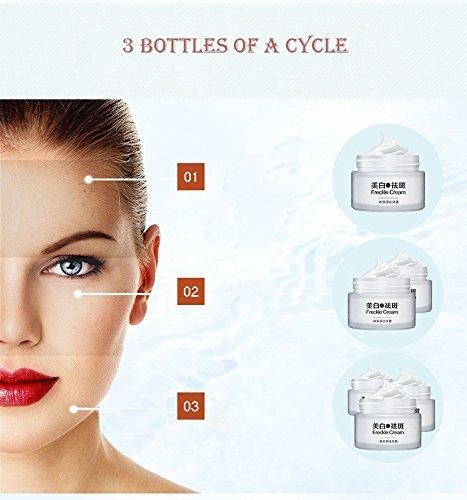 LEERYAAY Sport&Beauty Replenishing Water Anti Dark Wrinkle Acne Spots Freckle Skin Whitening Cream 30g by LEERYAAY (Image #3)
