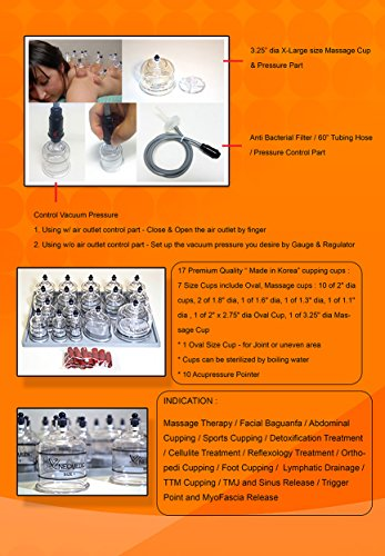 Electric-Automatic-Cupping-Complete-Set