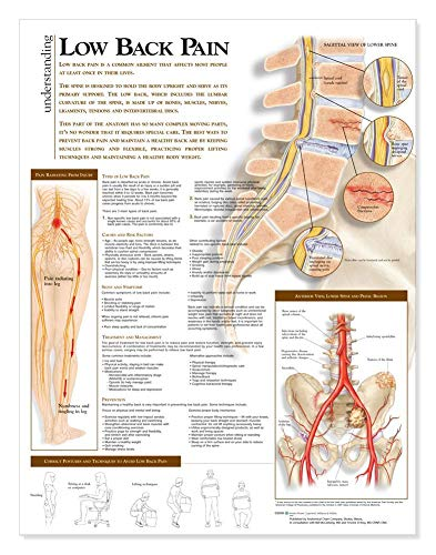(Understanding Low Back Pain Anatomical Chart)