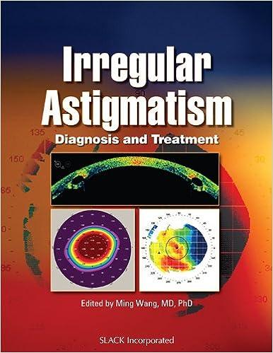 Irregular Astigmatism: Diagnosis and Treatment