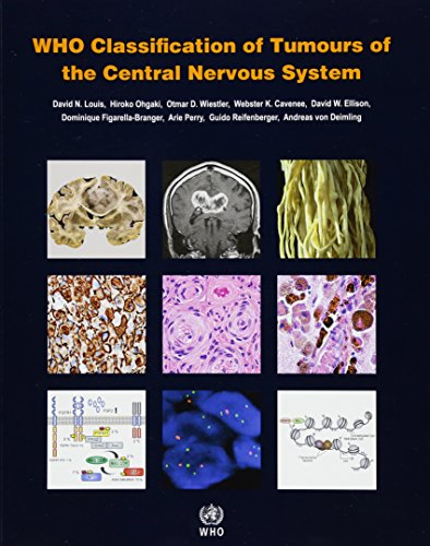 New used books for oncology who classification of tumours of the central nervous system iarc who classification of tumours revised fourth 2016 malvernweather Choice Image