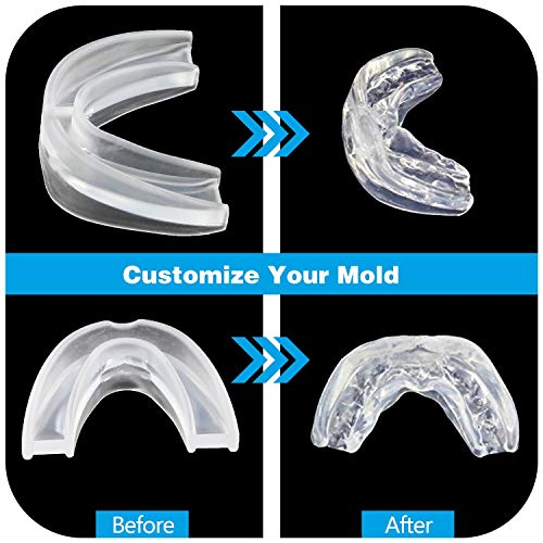 SleepMore Snore Stopper Mouthpiece-Snoring Solution Anti Snoring Devices, Sleep Aid Custom Fit Night Mouth Guard Bruxism and Snoring Solution by SleepMore (Image #3)