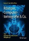 Röntgen, Computertomografie & Co.: Wie funktioniert medizinische Bildgebung?