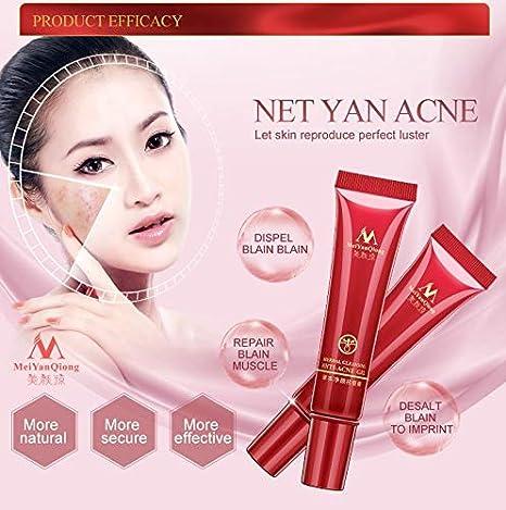 Amazon Com Herbal Cleansing Gel Face Anti Acne Treatment Cream