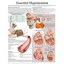 Essential Hypertension e-chart: Full illustrated