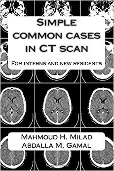 Simple common cases in CT scan: For interns and new residents