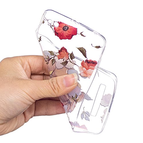 Funda para Xiaomi Redmi 4A , IJIA Transparente Gato Unicornio TPU Silicona Suave Cover Tapa Caso Parachoques Caja Suave Carcasa Shell Cubierta para Xiaomi Redmi 4A XY17