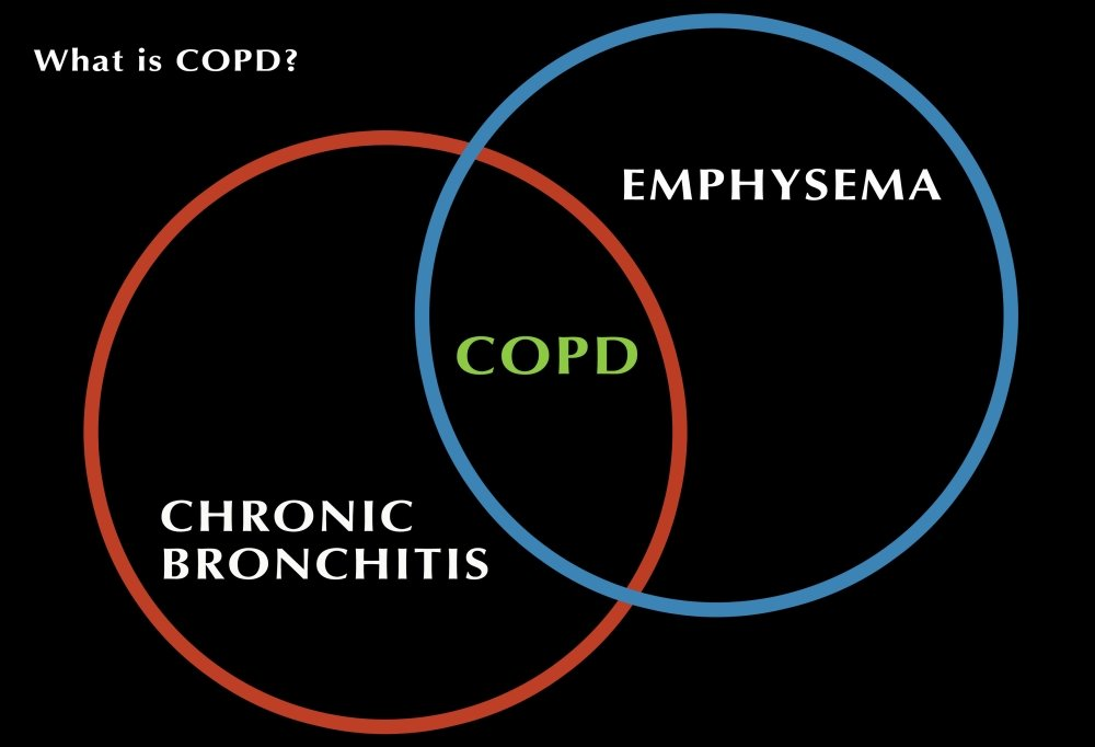 What is COPD Poster Print by Monica SchroederScience Source 36 x 24