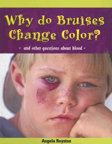 Why Do Bruises Change Color?: And Other Questions about Blood (Body Matters (Pb)) (Bruise Colors)