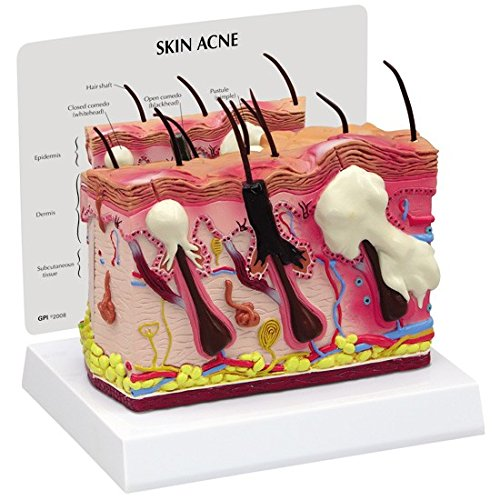 Skin Acne Anatomical Model Normal/Acne Cross-Section