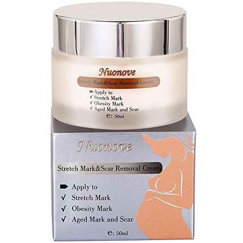 Stretch Mark Cream for Pregnancy, Stretch Mark Scar Cream, Postpartum Obesity Pregnancy Cream, Remove Stretch Marks From Pregnancy, Repair Scar Slack Line Abdomen Stretch Marks Postpartum