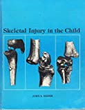 Skeletal Injury in the Child, Ogden, John A., 0812108094