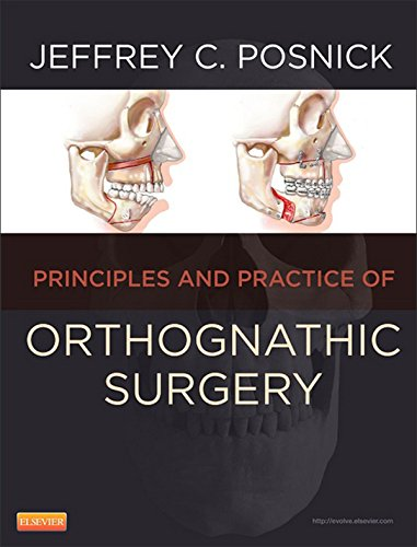Orthognathic Surgery: Principles and Practice Pdf