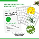Skin Tag and Acne Remover Patches, 108 Top-Grade